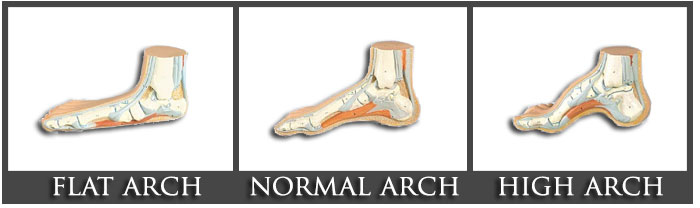 feet-archs