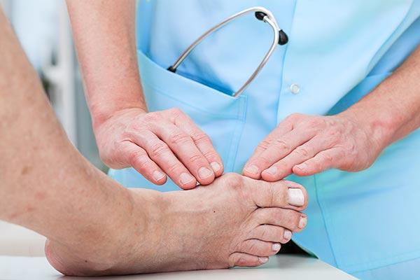 bunions-orthopaedist
